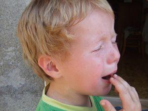 Cum Îngrijim Juliturile la Copii